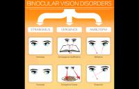 Binocular Vision Disorders Infographic - amblyopia strabismus vergence disorders exotropia divergence excess strabismic refractive esotropia exotropia high resolution