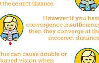 Convergence Insufficiency Description Graphic - convergence insufficiency amblyopia strabismus vergence disorders exotropia divergence excess strabismic refractive esotropia exotropia high resolution